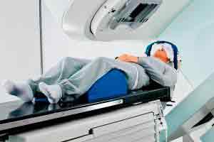 Princípios da Radioterapia